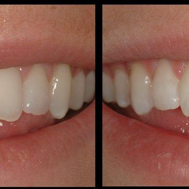 Teeth Bonding