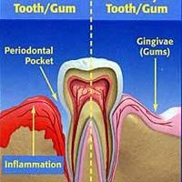 periodontal disease 3